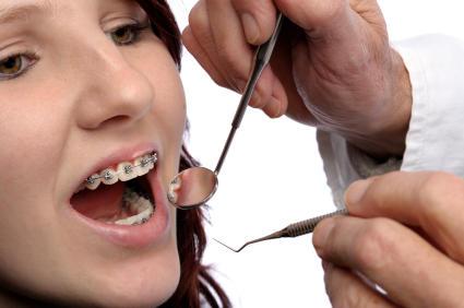 Perchè i denti si rovinano?